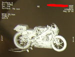 CT scan: motorcycle